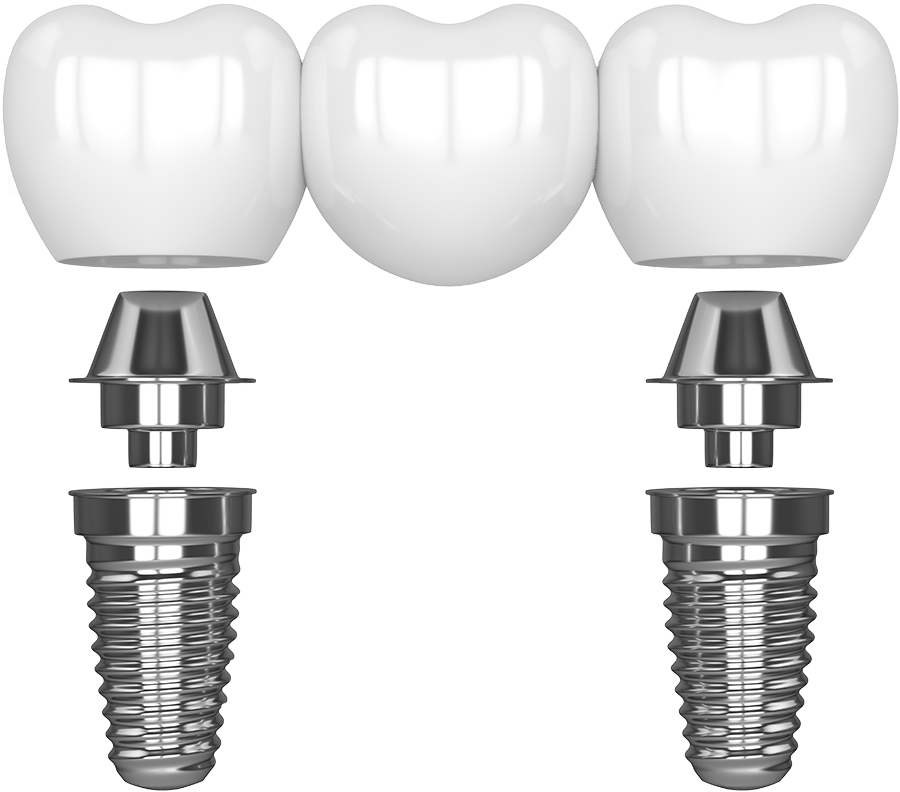 dental implant bridge model West Palm Beach, FL