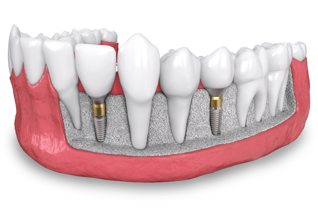 dental implant model West Palm Beach, FL