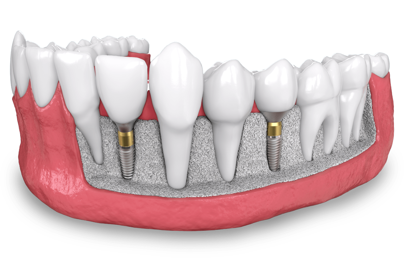 Schedule an appointment with Dr. Senft at South Florida Sedation Dentistrydental implant model West Palm Beach, FL