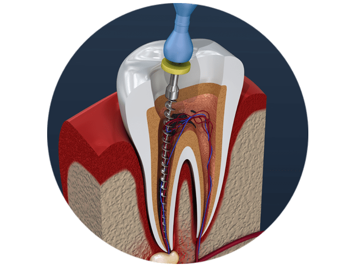 infected tissue removed from tooth model West Palm Beach, FL