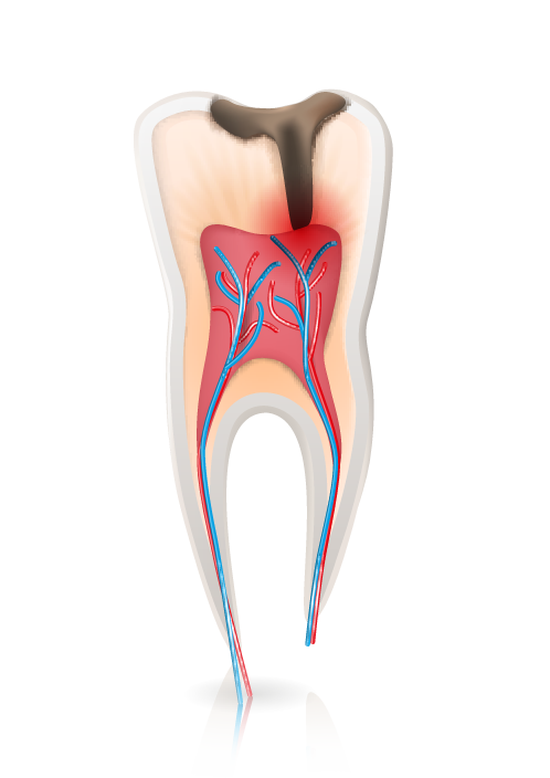 root canal graphic West Palm Beach, FL
