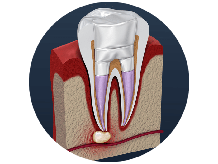 tooth filled with material and sealed model West Palm Beach, FL