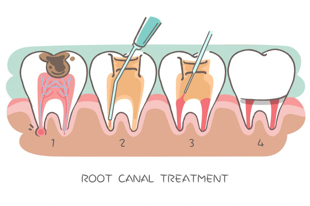 Where can I get a West Palm Beach Root Canal?