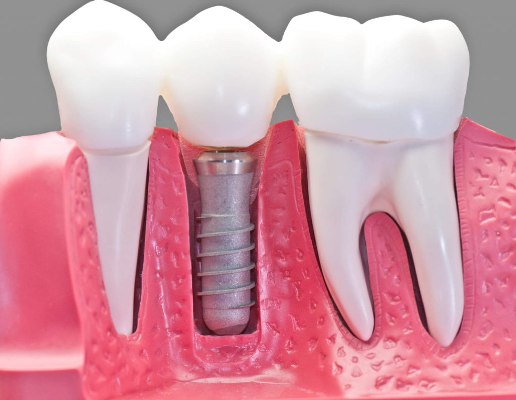 Where to find Palm Beach Dental Implants?