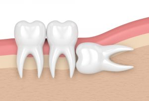 Where can I get a Dental Extraction West Palm Beach?