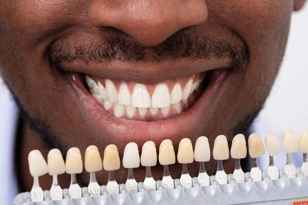 where can i get teeth in a day in west palm beach?