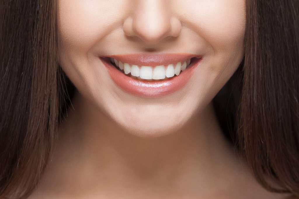 smile after Sedation Dentistry West Palm Beach